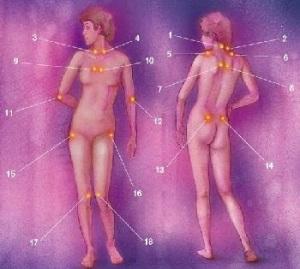 Do I Have Fibromyalgia, Fibromyalgia Tender Points, Fibromyalgia and Treatment, Fibromyalgia Do I Have It